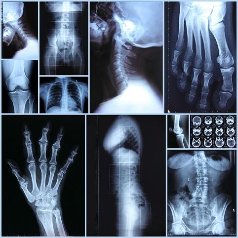Рентген суставов в красноярске болит колено у танцора